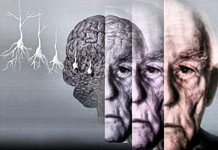 عامل خطر آفرین ابتلا به فراموشی و زوال عقل